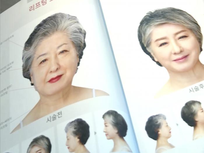 EP51 南韓篇:終身美麗?