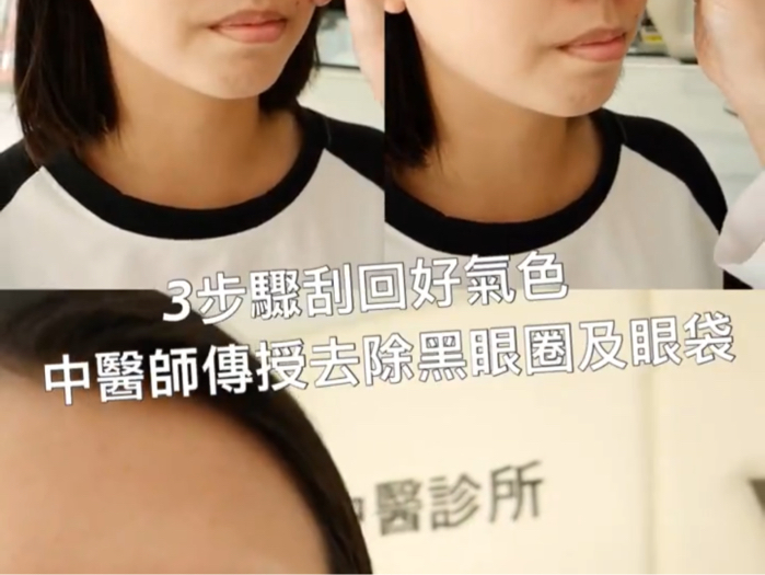 3步驟刮回好氣色,中醫師傳授去除黑眼圈和眼袋
