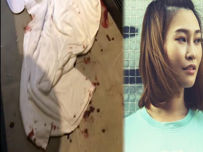 酒店浴室玻璃門離奇爆裂 模特兒浴血破相